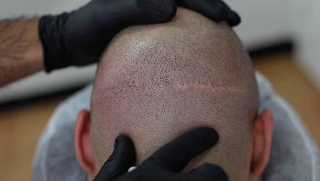 scalp micropigmentation cover up hair transplant scars
