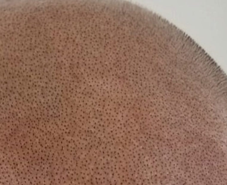 scalp micropigmentation look real