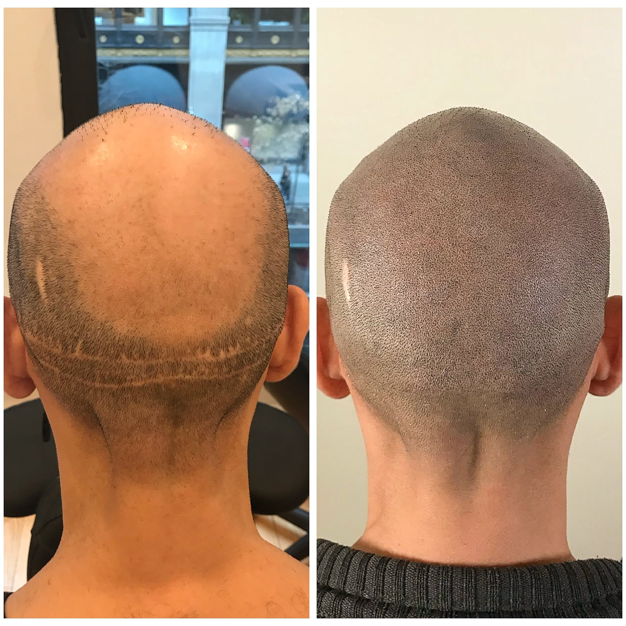 scalp tattoo for hair transplant scars